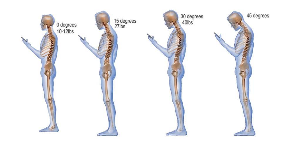 گردن درد پیامکی چیست؟
